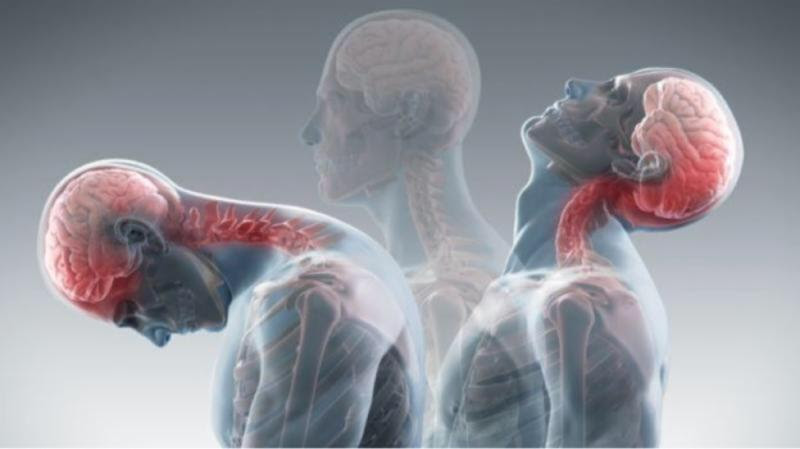 translucent image of person stretching their neck in multiple directions